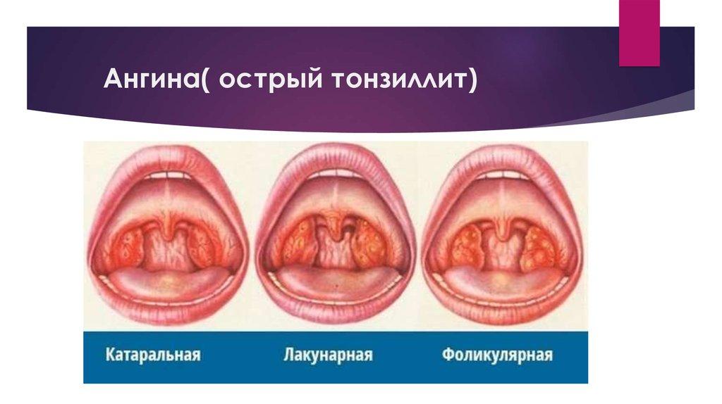 Фарингит при беременности: лечение и профилактика /