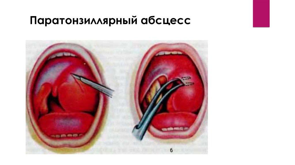 Паратонзиллярный абсцесс лечение в домашних условиях температуры 427