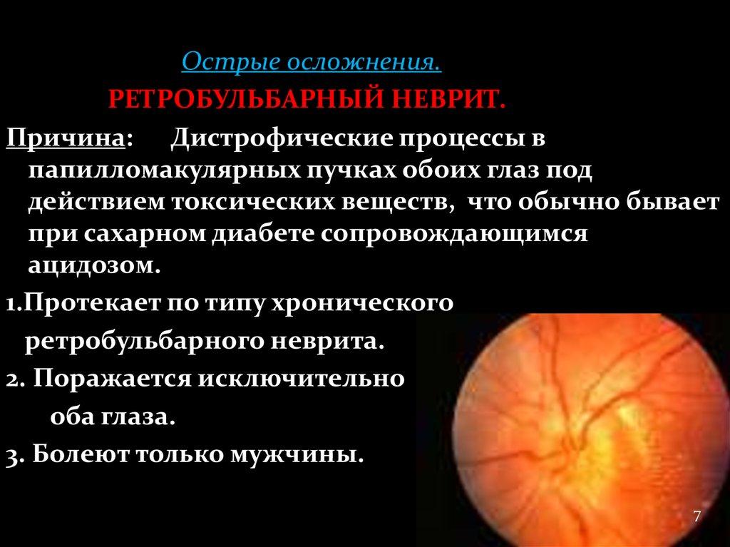 хронический неврит зрительного нерва меньше отводит