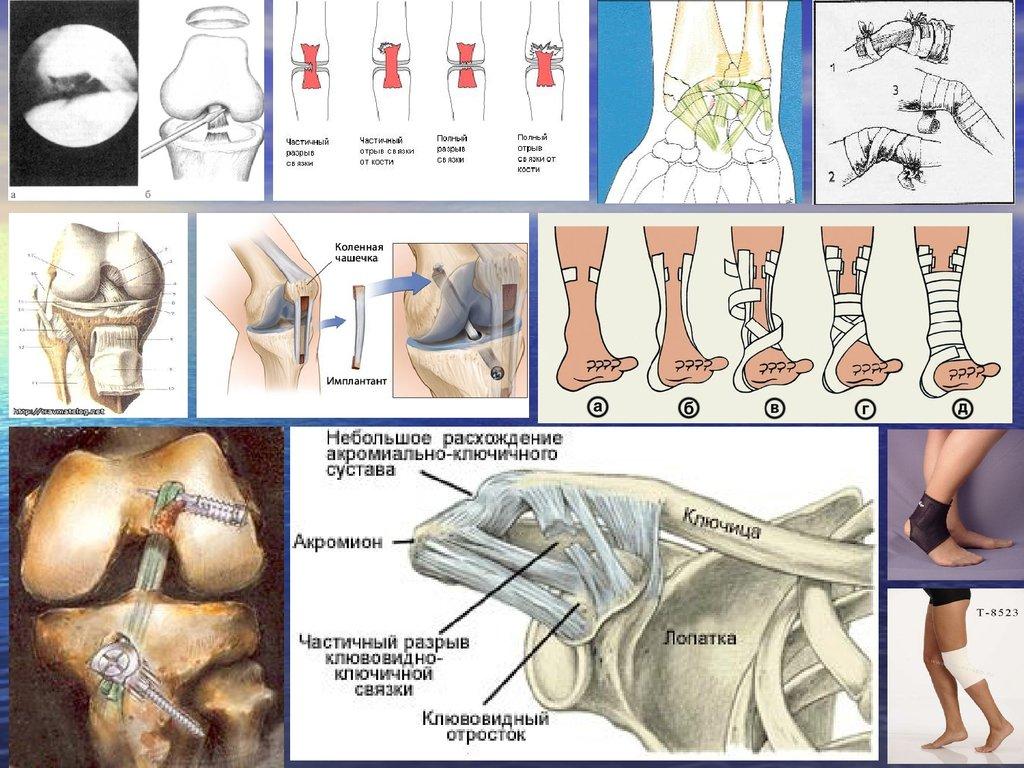 операции при лечении суставов бедра