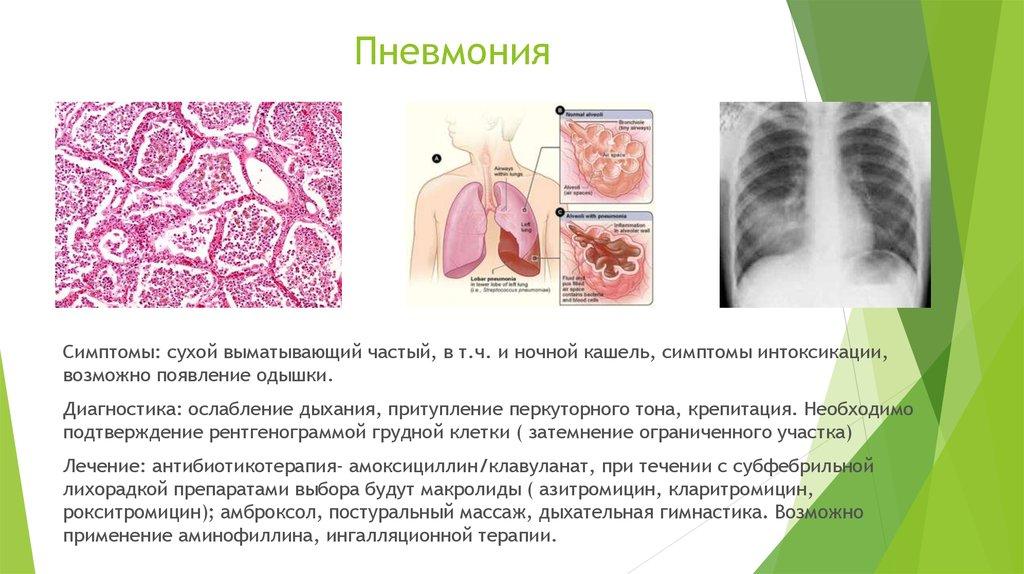 Чем лечат пневмонию у детей в домашних условиях