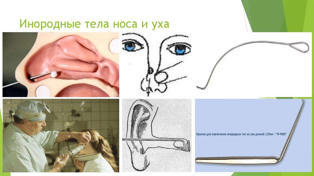 Как в домашних условиях вытащить инородное тело из глаза 400