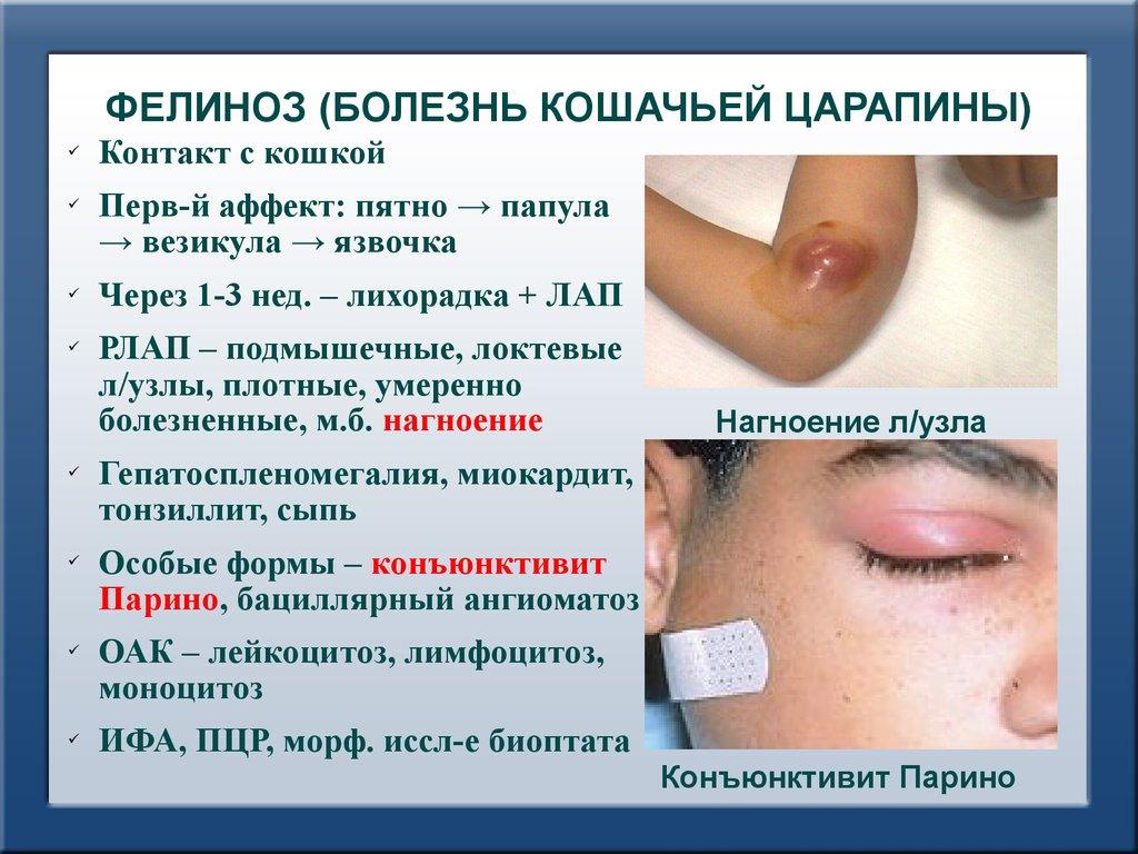 Острые инфекционные заболевания слизистой оболочки полости рта