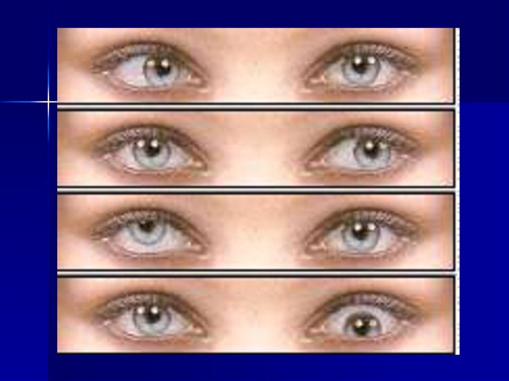 Жесткие линзы для коррекции зрения купить