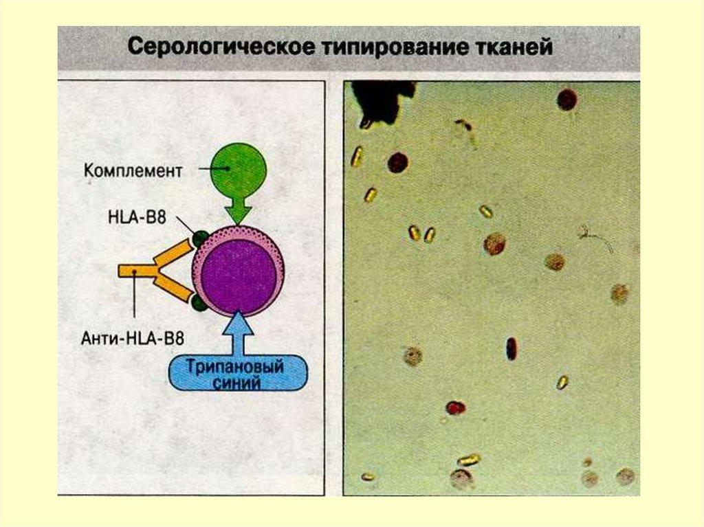 Сыворотка Антилимфоцитарная