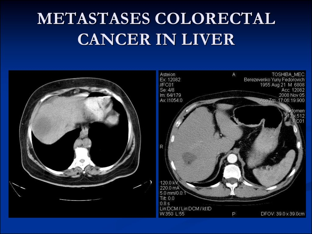 evaluation of liver metastases from colon and rectal cancer Advances in colorectal cancer screening  as the latest surgical techniques  available for treating with people colorectal cancer  needle-guided tumor  destruction procedures offer near-equivalent lengths of local cancer.