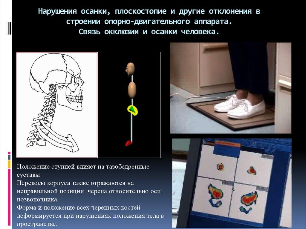 Корсет ортопедический пояснично крестцовый б 720