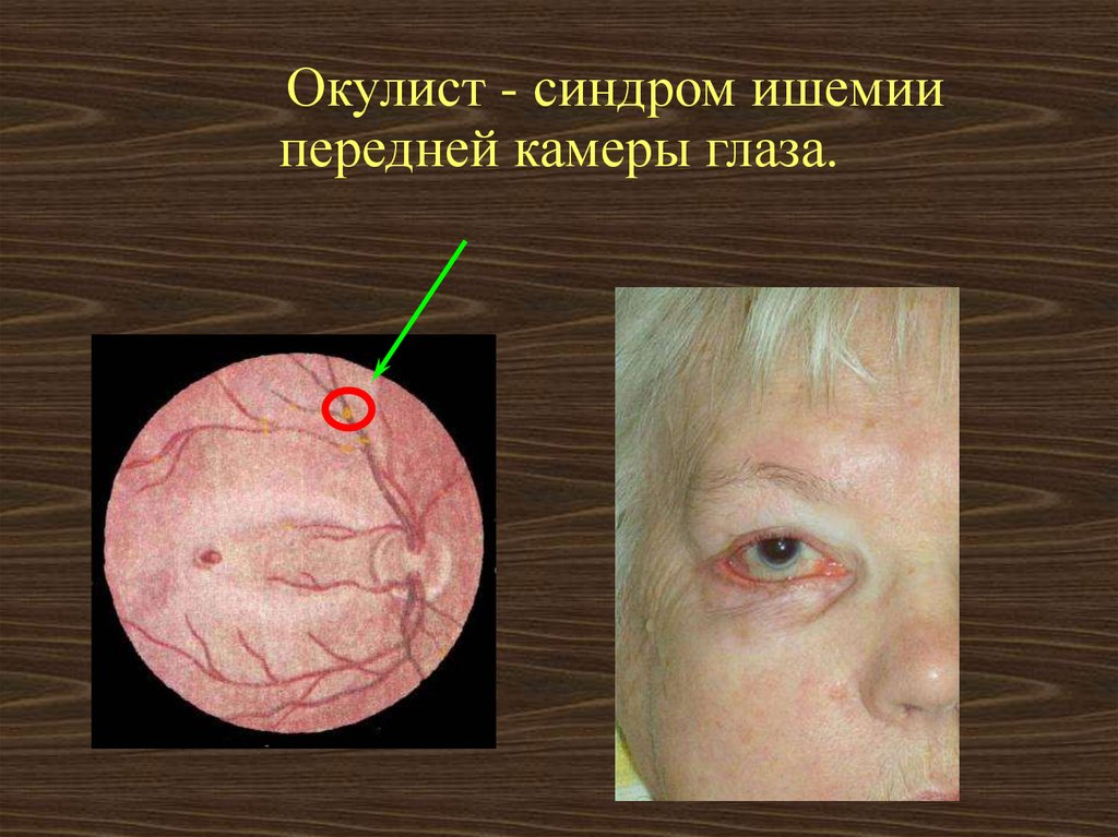 транзиторные ишемические атаки лечение