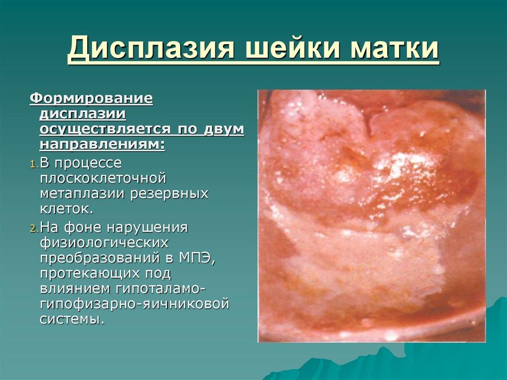 Дисплазия лечение схема шейка матки