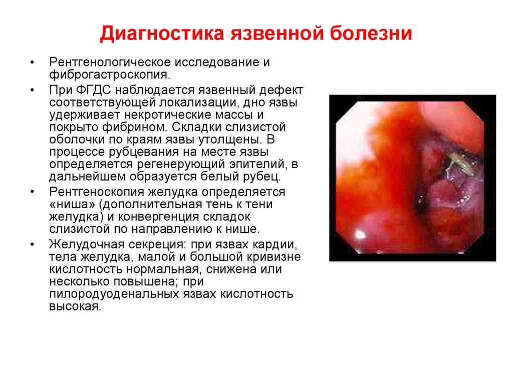 Язвенная болезнь - online presentation