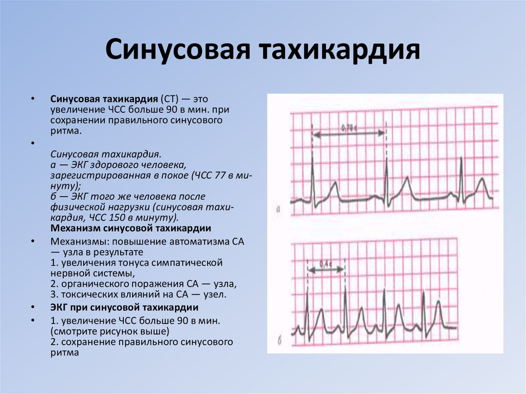 Синусовая тахикардия у беременных 34