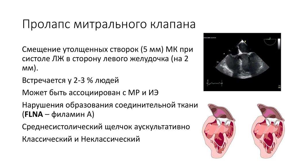 Пролапс митрального клапана у беременных 90