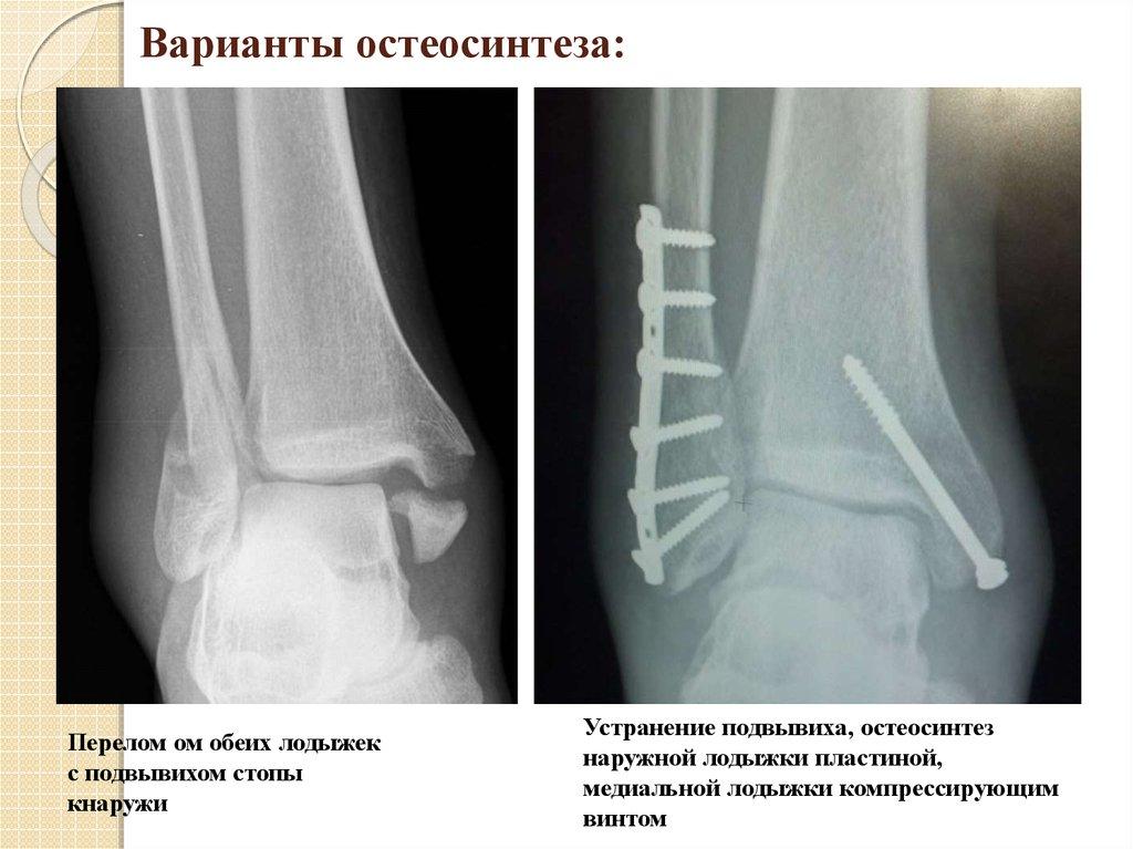 Сустав Большого Пальца Ноги Болит Как Лечить