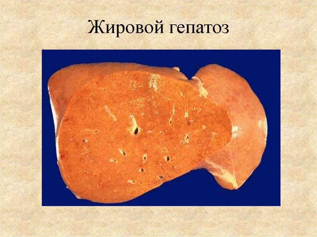 Жировой гепатоз печени причины лечение