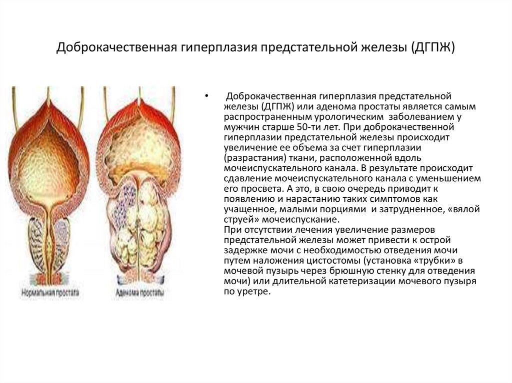 Злокачественная аденома предстательной железы