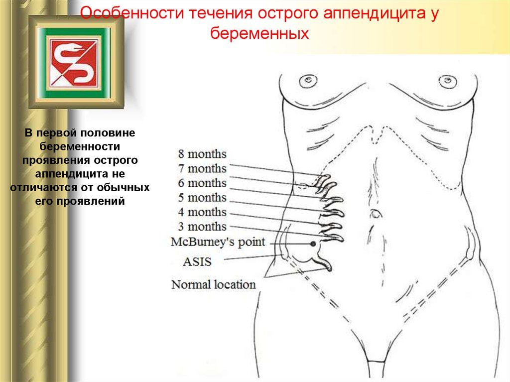 Проявление аппендицита у беременных 86
