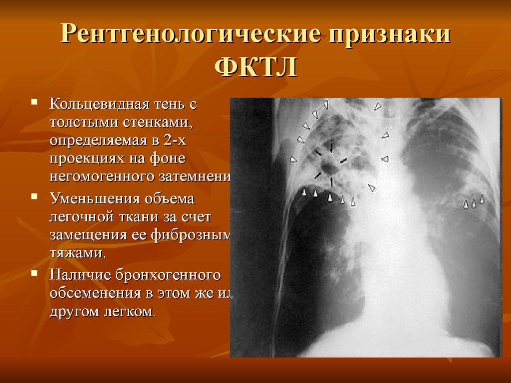 Рентгенологические признаки туберкулеза