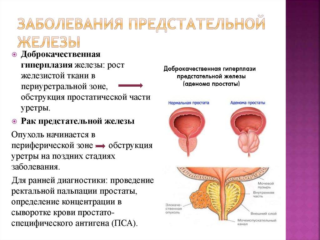 Диагноз доброкачественная гиперплазия предстательной железы