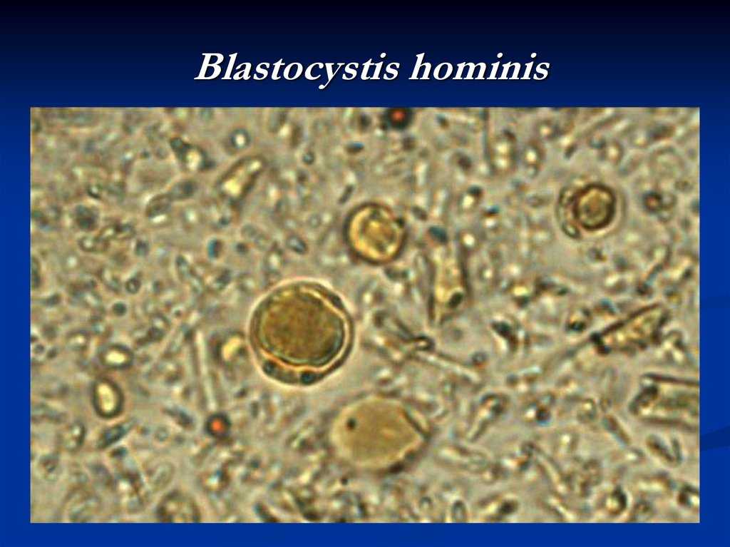 blastocystis hominis and colorectal cancer Laboratory of parasitology  [15 x effects of symptomatic and asymptomatic isolates of blastocystis hominis on colorectal cancer cell line, hct116.