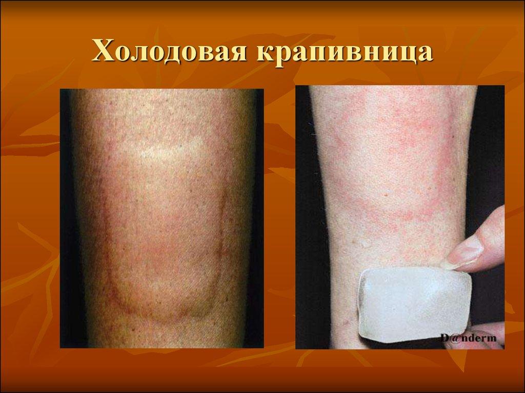 аллергия на холод симптомы и лечение тому