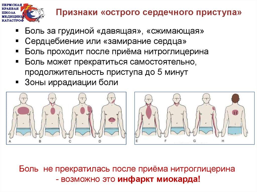 Как определить сердечный приступ у человека