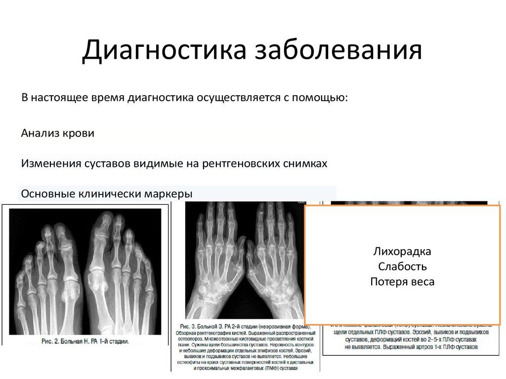 Аутоиммунные заболевания суставов гирудотерапия приполиартрите в плечевом суставе