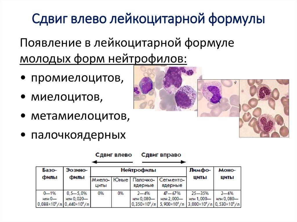 Палочкоядерный крови общем сдвиг анализе в крови стоимость анализ общий на пса