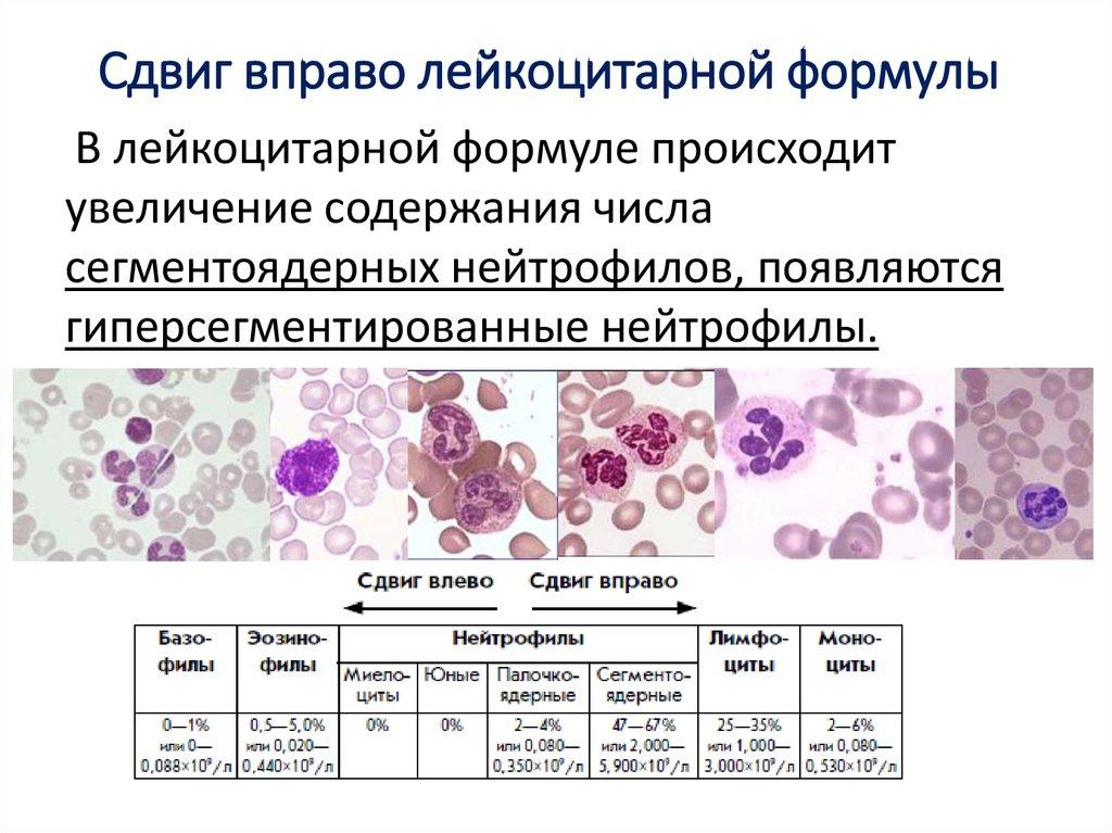 Сдвиг лейкоцитарной формулы вправо причины