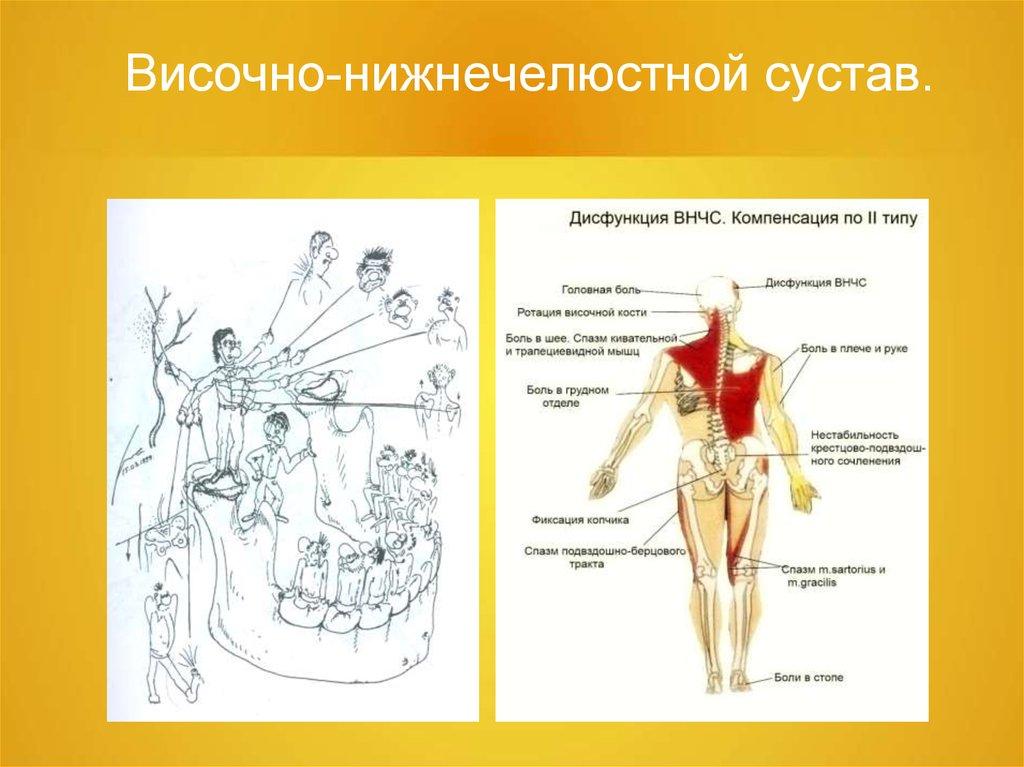 Нестабильность височно - нижнечелюстных суставов болит сустав и пятка