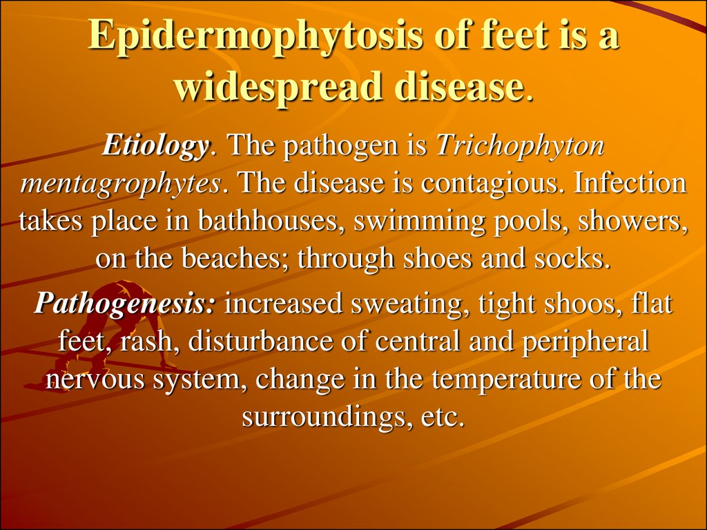 Epidermophytosis of feet is a widespread disease.