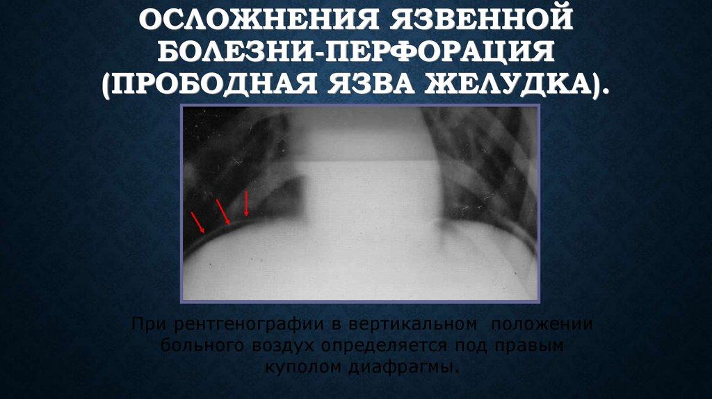Симптомы осложнения язвенной болезни