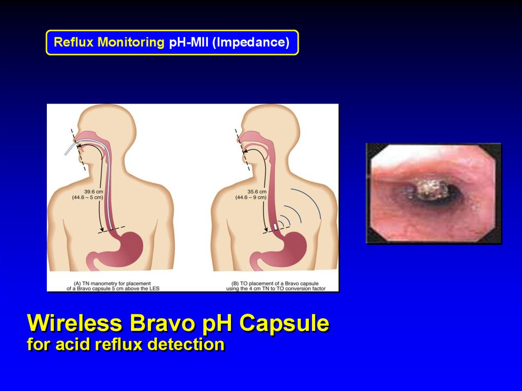 48-Hour Bravo Esophageal pH Test | Cleveland Clinic