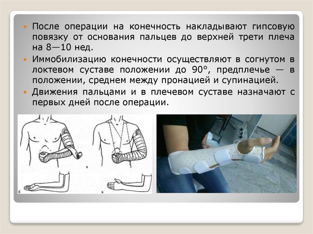 Повреждения типа Монтеджа и Галеацци - online presentation