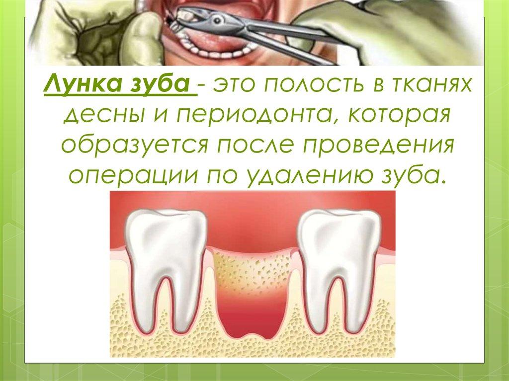 Когда вставлять зуб после удаления