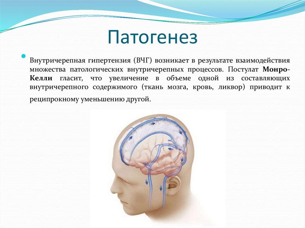 Как распознать внутричерепную гипертензию