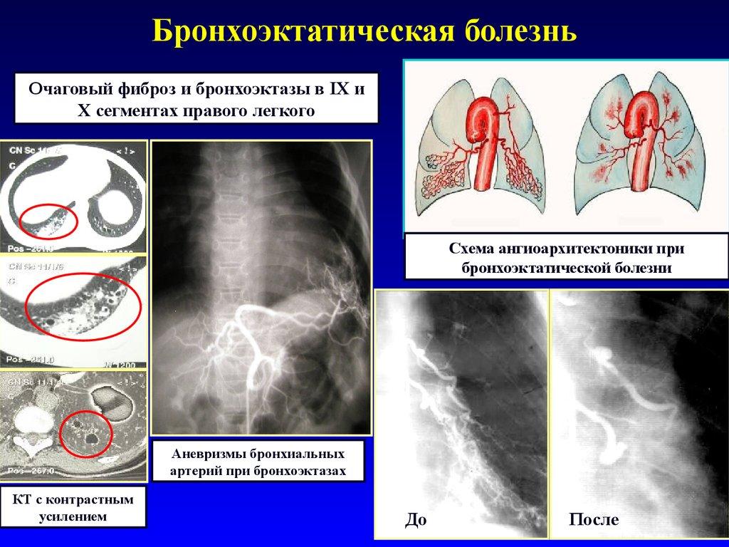Бронхоэктатическая болезнь лекция