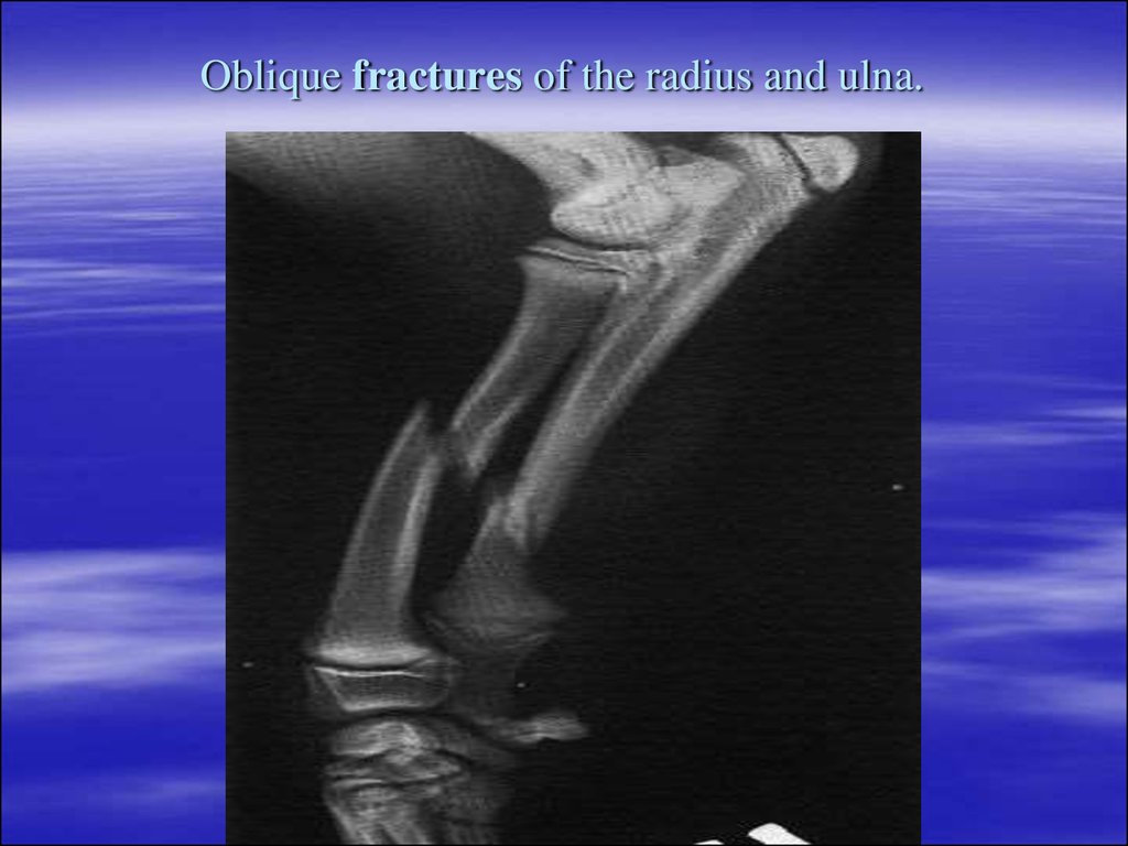 Oblique fractures of the radius and ulna.