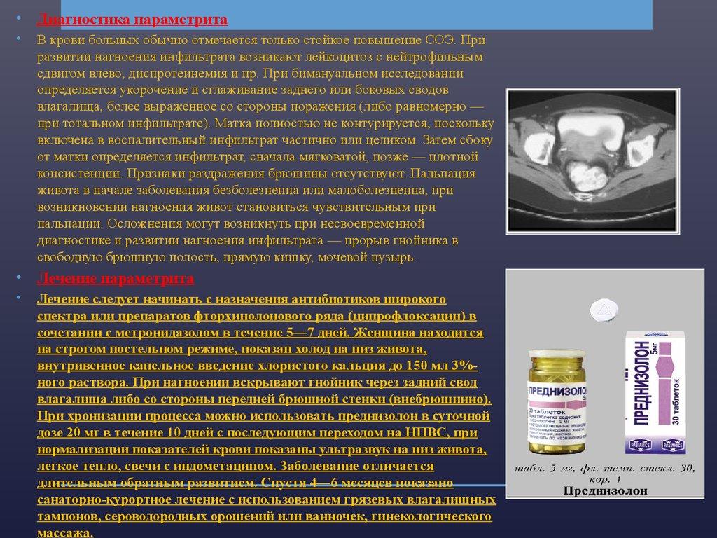 Классификация воспалительных заболеваний - Гинекология в Киеве