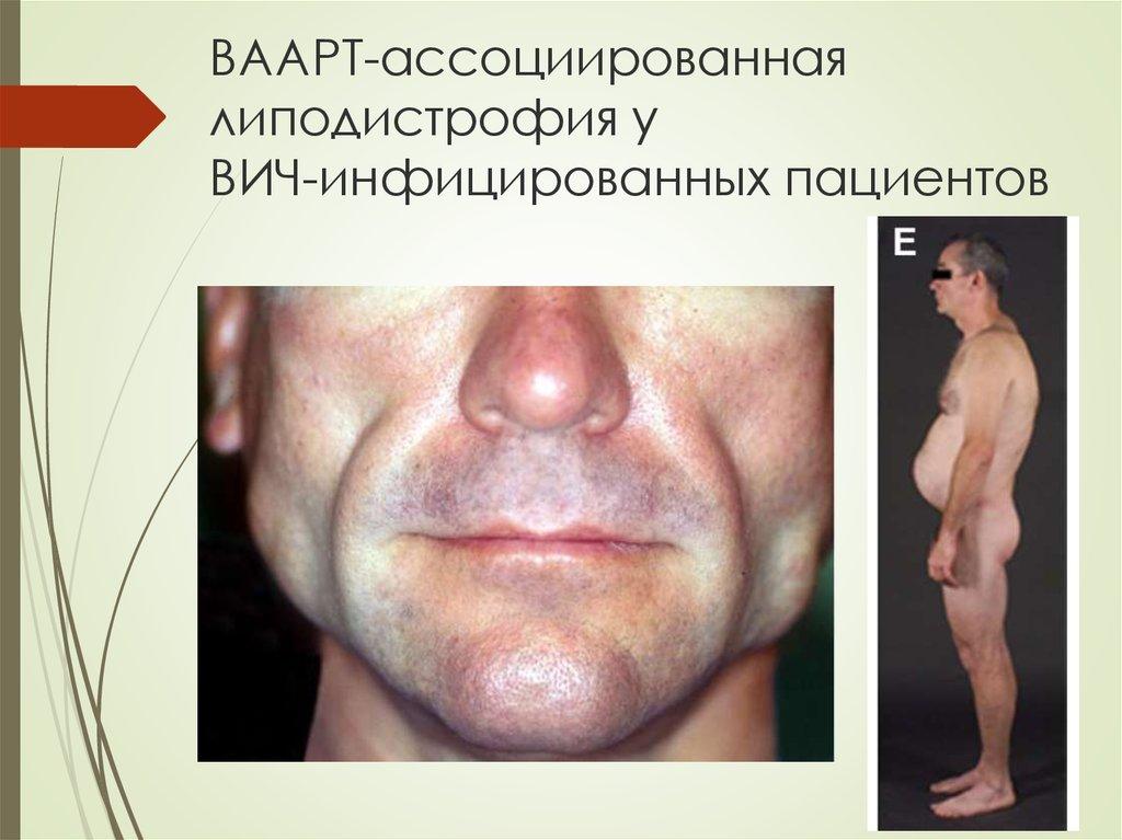 липодистрофия при вич фото