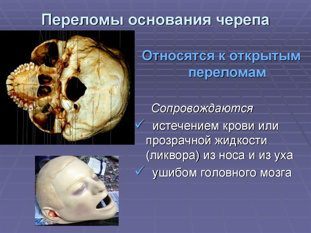 Картинки переломы свода черепа