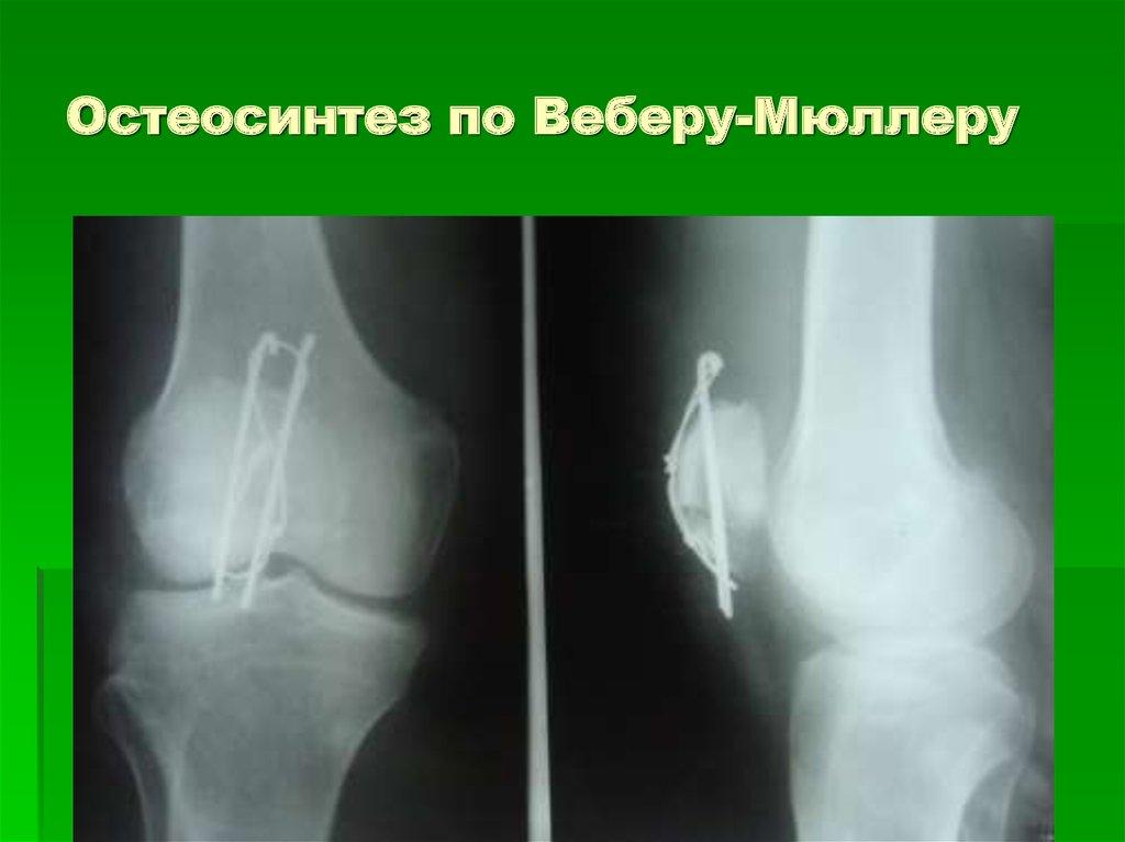 Остеосинтез коленного сустава узи суставов ул.аэровокзальная красноярск