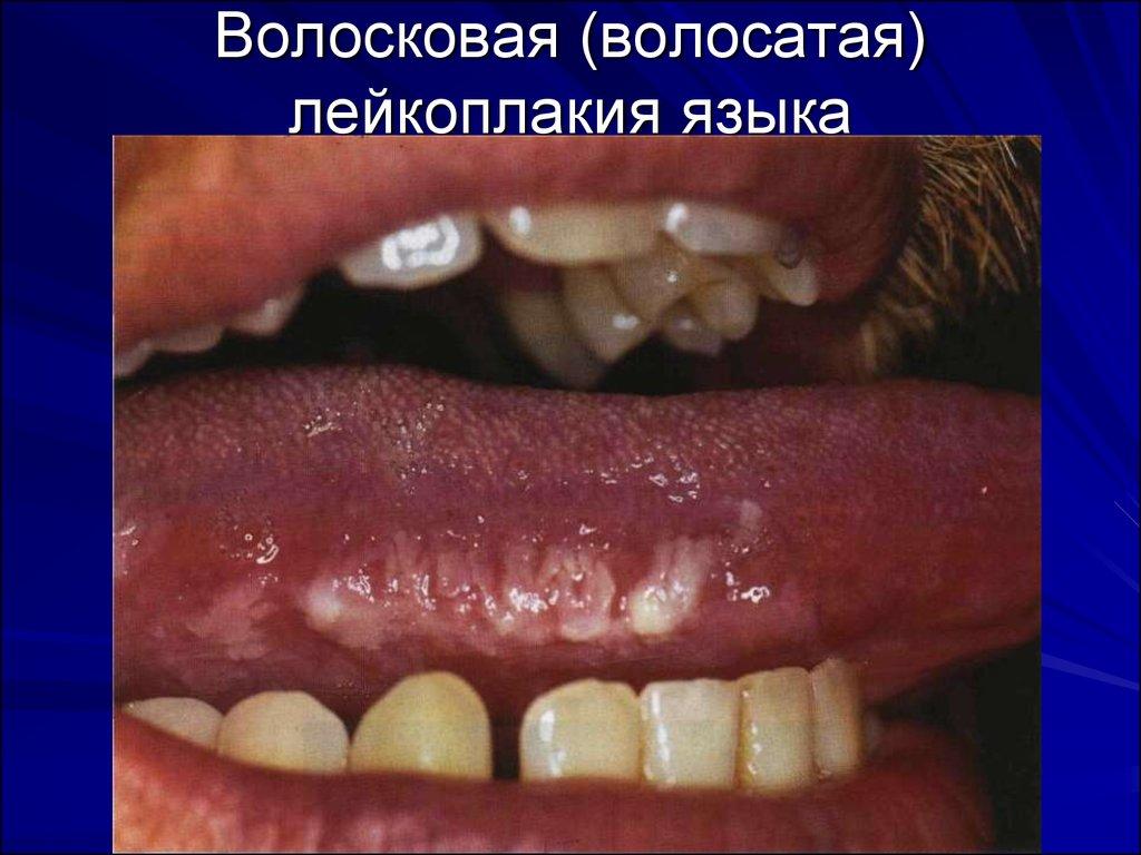 территориально мягкая лейкоплакия слизистой оболочки полости рта пределах одного часового