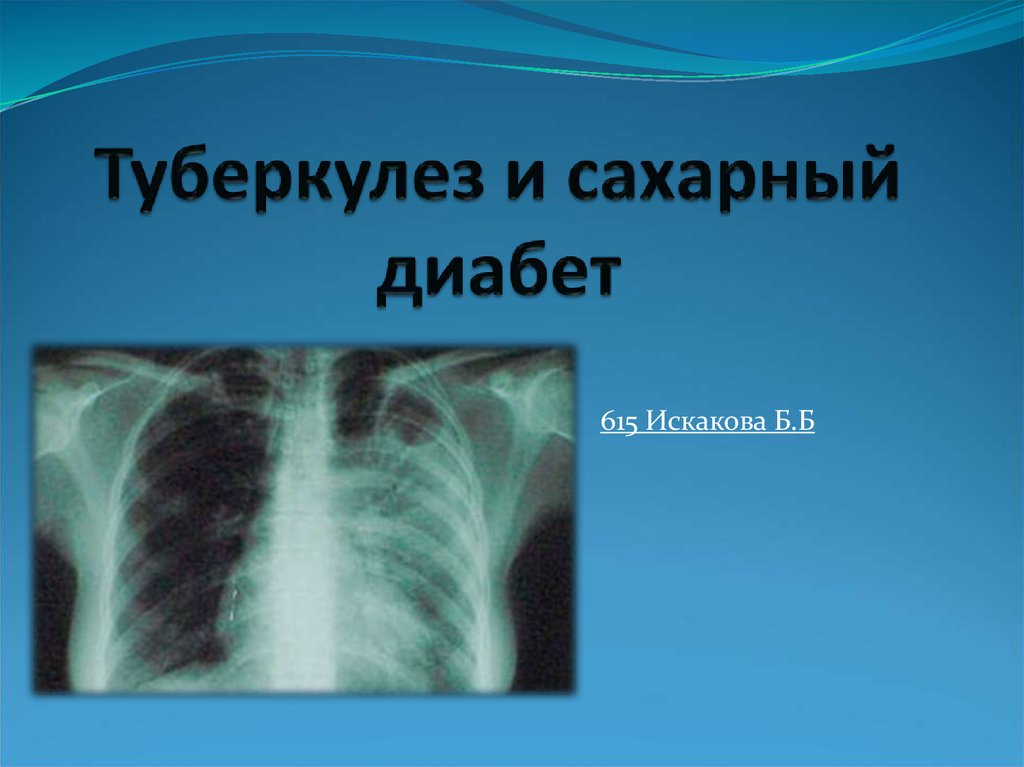 tuberculosis presentation tuberculosis