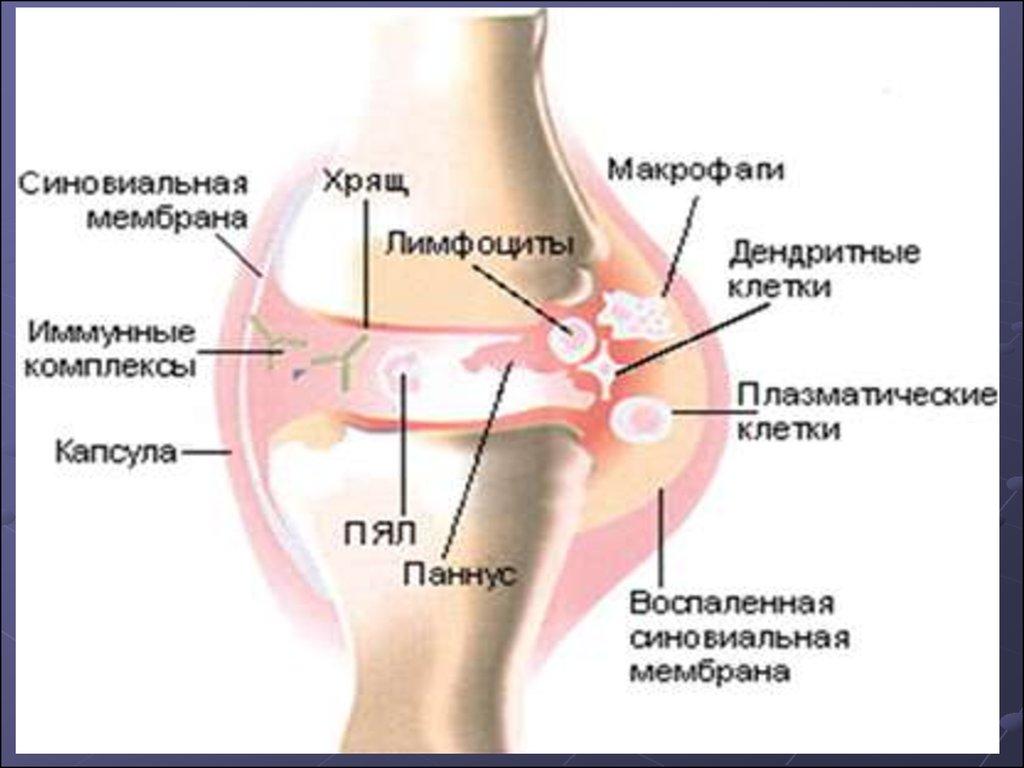 Такое суставно-висцеральная форма с ограниченными висцеральными поражениями эпикондилит локтевого сустава причины