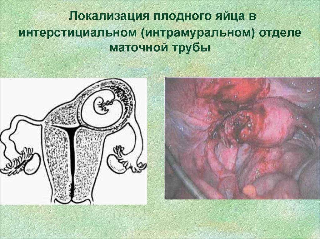 Беременность в интерстициальном отделе маточной трубы