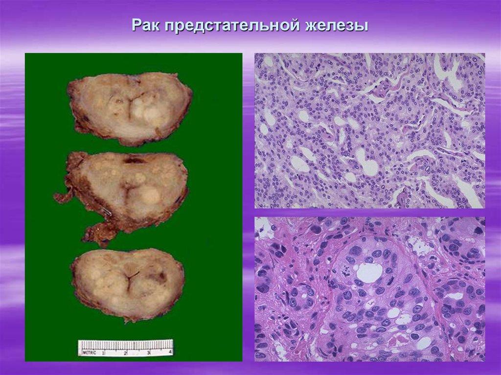 Урологические пациенты обращаются к врачам уже при тяжелых фазах урологической патологии (iii или iv), когда начинается активный процесс метастазирования и интоксикации организма.