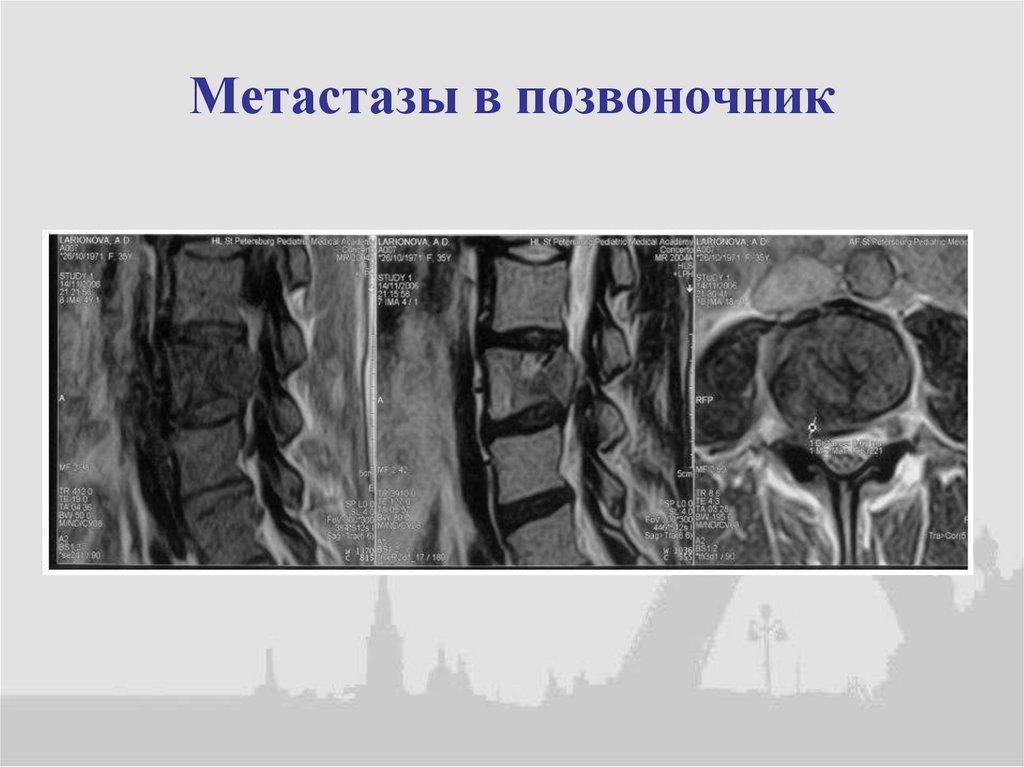 Метастазы в позвоночнике от чего помогает