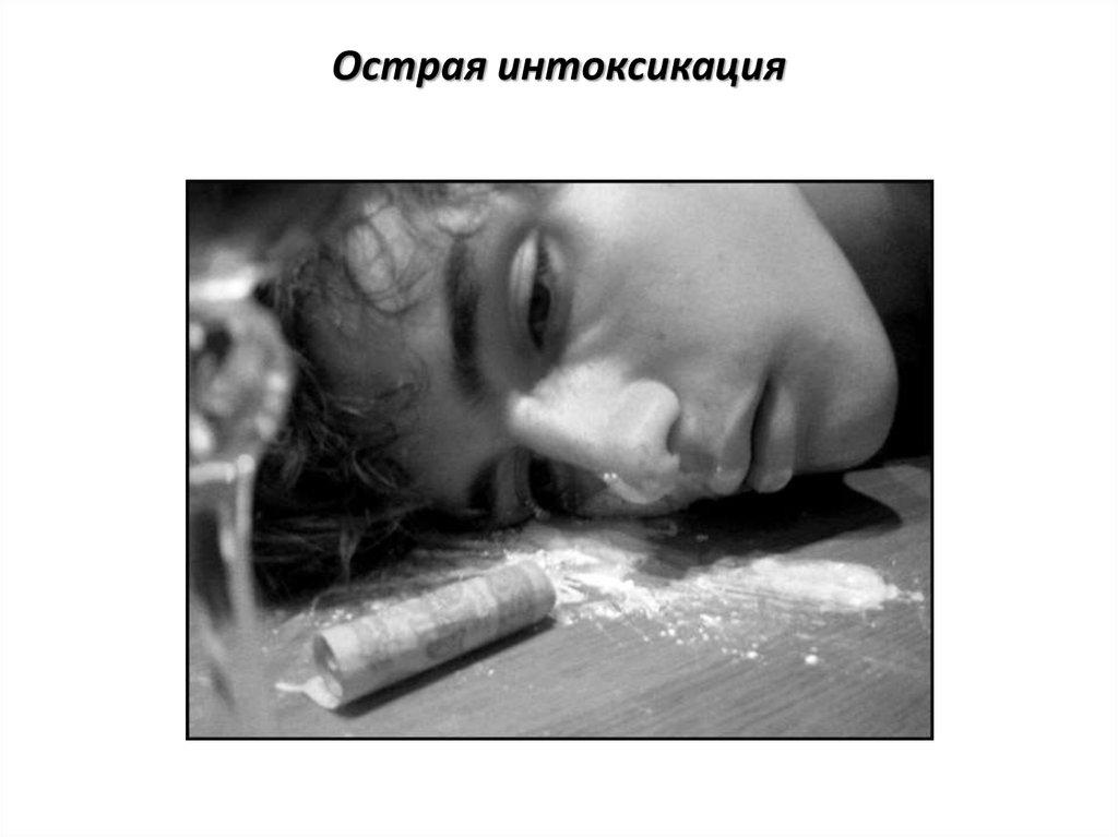 Пав наркология лечение наркомании в калужской области