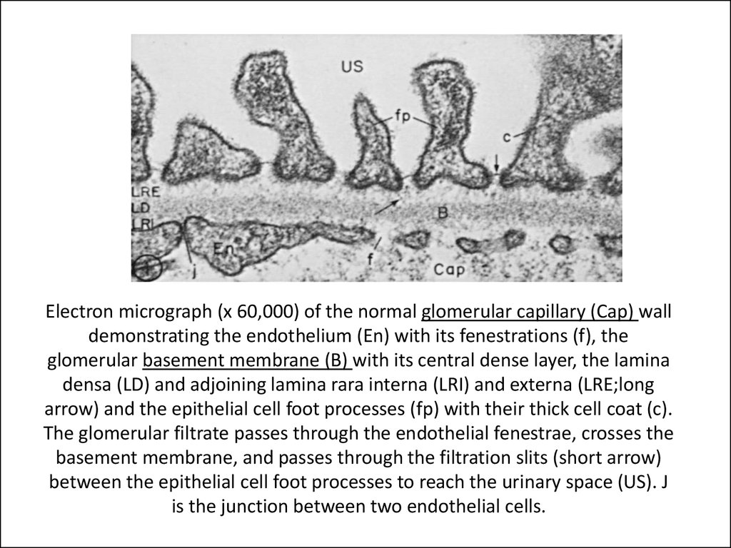 Electron micrograph (x 60,000) of the normal glomerular capillary (Cap) wall demonstrating the endothelium (En) with its fenestrations (f), the glomerular basement membrane (B) with its central dense layer, the lamina densa (LD) and adjoining lamina rara