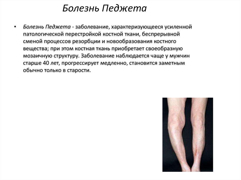 Заболевания суставов, болезни костно-мышечного аппарата фиксатор на плечевой сустав эластичный мод.8104